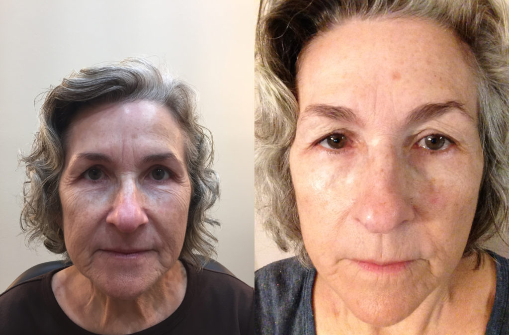 microneedling-before-and-after-spring-hill-botox-center-hernando