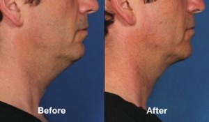 beforeafter102-kybella