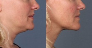 kybella01-double-chin-treatment