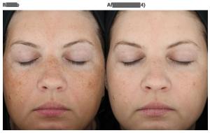 skin-medica-spring-hill-treatment-florida-ba-35