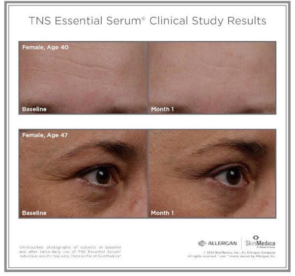 tns-essential-serum-results