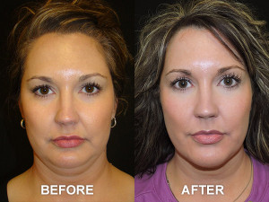 kybella-before-after-9-large