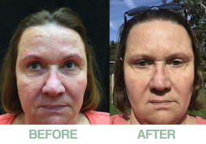 before-after-prp-divinity-med-spa-spring-hill-florida