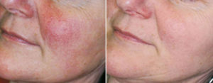 rosacea-before-after-600