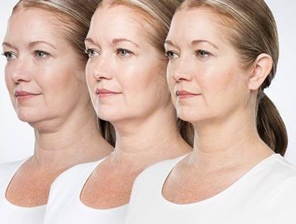 KYBELLA Special    | Divinity Med Spa | Coolsculpting | Botox