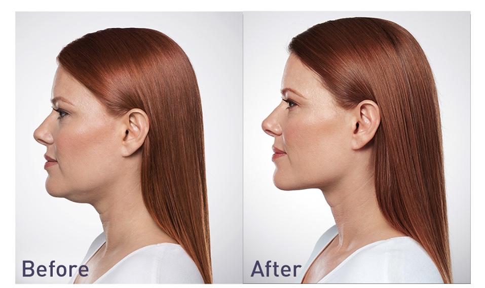 KYBELLA Special      Divinity Med Spa   Coolsculpting   Botox