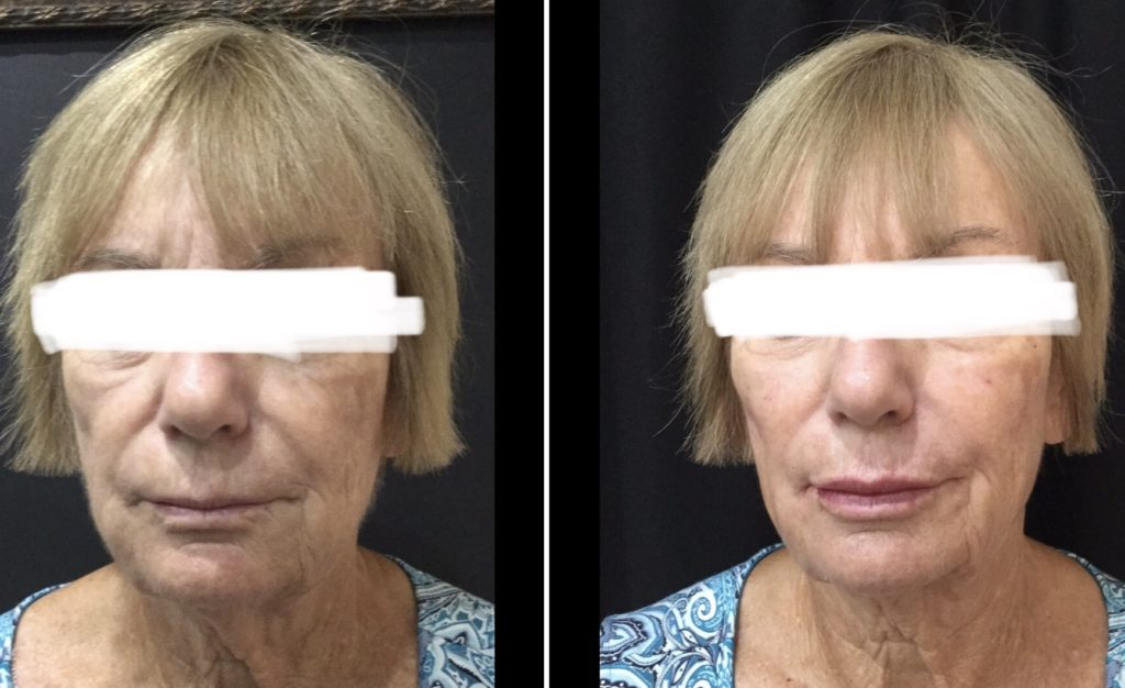Divinity Med Spa - Before and After Treatment | Divinity Med