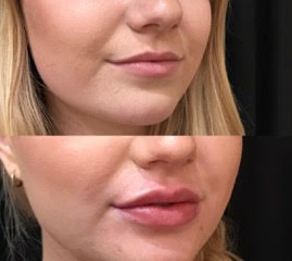 2 syringes of Juvederm Ultra to lips