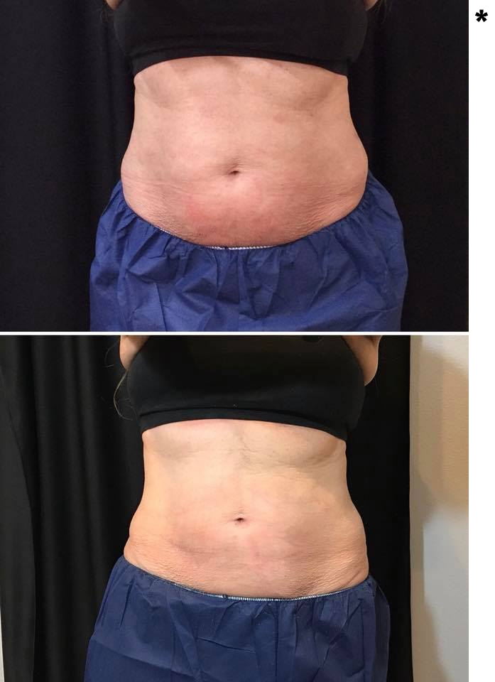 1 Treatment - 4 cycles to the abdomen
