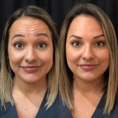 Botox to forehead