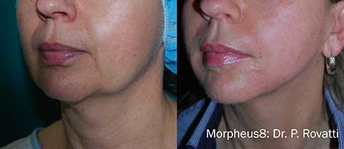 morpheus8 before-after3
